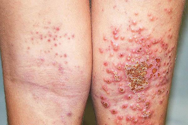 Viêm da cơ địa bội nhiễm là gì?
