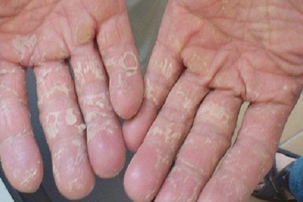 Bệnh chàm khô tróc vảy
