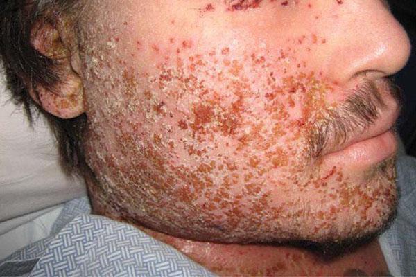 biến chứng bệnh chàm vi khuẩn