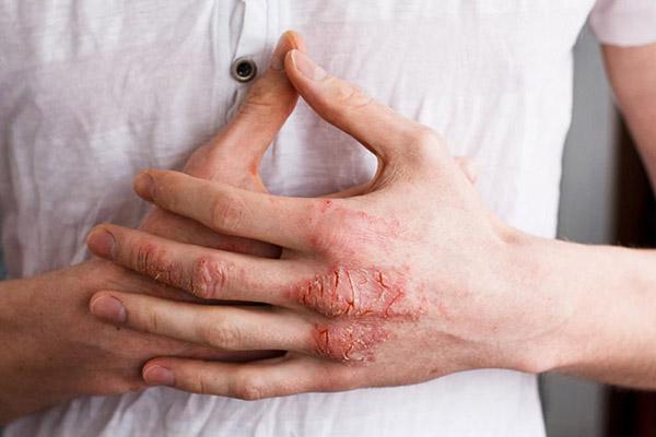 bệnh eczema có chữa khỏi được không